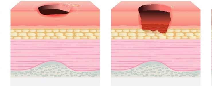 graphic of a pressure injury through skin and fat